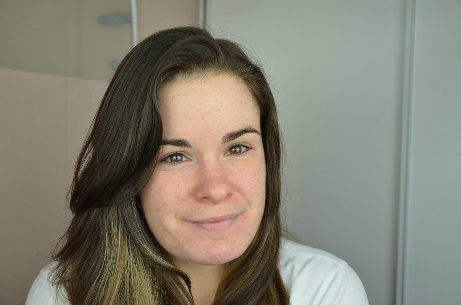 bilan du quatrième mois de traitement contre l'acné tri acnéal avène