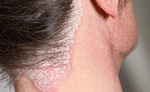 Obat Gatal Di Wajah dan Leher Yang Mujarab