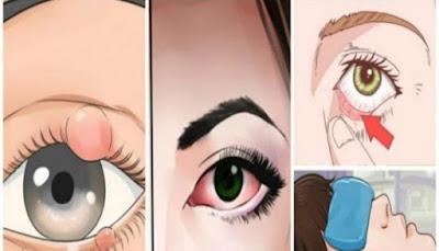 ذا لاحظتي هذا العلامات على عينك يجب عليكي زياره الطبيب فورأ فقد يظهر للبعض انه احمرار او عرض طارئ ولكن ... هام للغايه !
