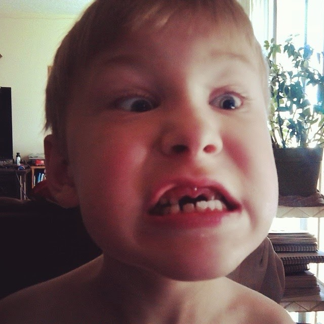Making Faces To Show Off His Missing Two Front Teeth That