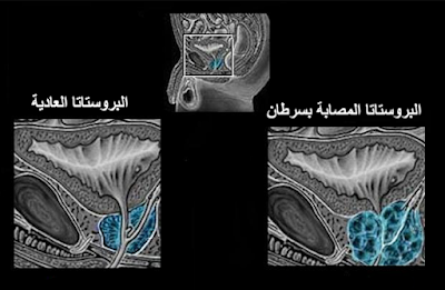معلومات عن سرطان البروستاتا