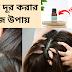 ৩ টি সহজ খুশকি দূর করার উপায় | Easy Home Remedies For Dandruff | AmiTanni