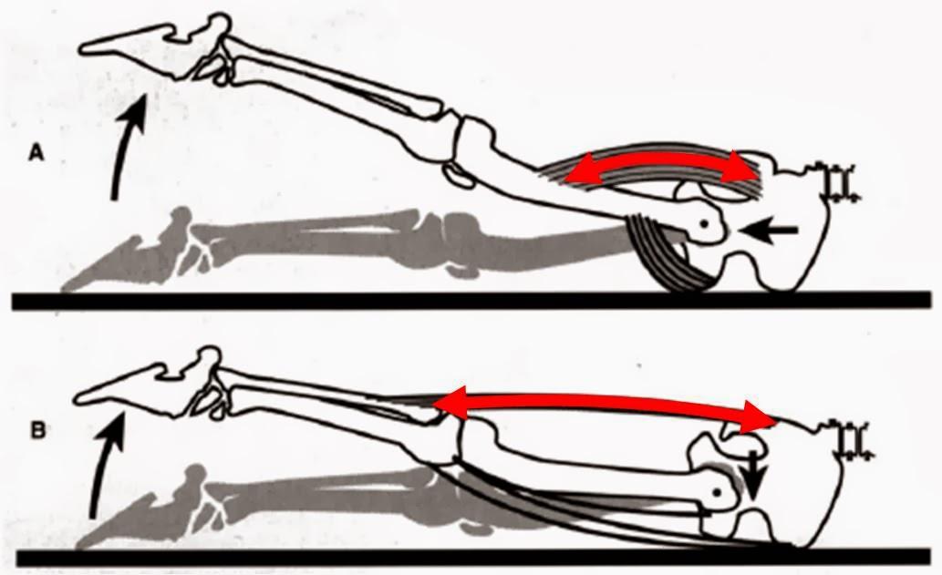 Seis detalles todos deben descubrirse sobre dolor en la parte baja de la espalda