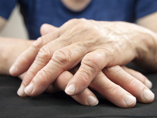 Arthritis pain: Could CBD help relieve symptoms of the inflammatory joint condition?