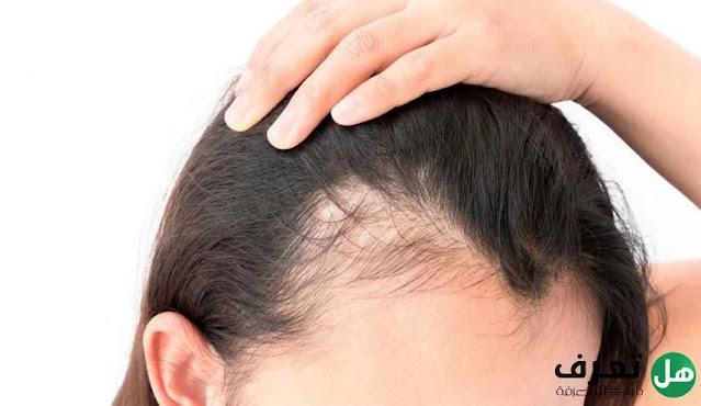 هل تعرف, أسباب تساقط الشعر وأهم طرق العلاج؟