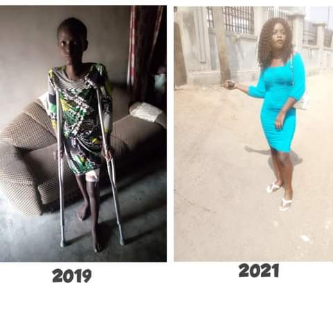 """""""For 6 months on the sickbed my boyfriend and friends never checked up on me,"""" - Nigerian lady shares her story of recovery"""