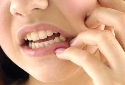 cara mengobati skait gigi secara alami