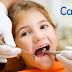溝隙封填:給牙齒的防塵貼片
