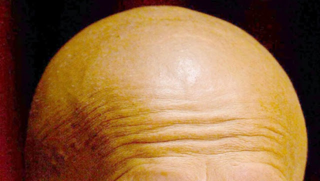 Cure for baldness coming soon, say scientists!
