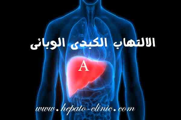الالتهاب الكبدي الوبائي, الالتهاب الكبدى الوبائى عند الاطفال, الالتهاب الكبدى الوبائى ا, الالتهاب الكبدي الوبائي أ, الالتهاب الكبدي الوبائي أ عند الاطفال, كيف ينتقل الالتهاب الكبدي الوبائي, كيف ينتقل مرض الالتهاب الكبدي الوبائي, التهاب كبدي وبائي, التهاب كبدي وبائي a, الالتهاب الكبدي الوبائي وانواعه, اعراض الالتهاب الكبدي الوبائي وعلاجه, اعراض وعلامات الالتهاب الكبدي الوبائي, الالتهاب الكبدي الوبائي ما هو, هل الالتهاب الكبدي الوبائي معدي, هل الالتهاب الكبدي الوبائي, ما هو الالتهاب الكبدى الوبائى عند الاطفال, ما هى اعراض الالتهاب الكبدى الوبائى, ما هو مرض الالتهاب الكبدى الوبائى, ما هو تحليل الالتهاب الكبدي الوبائي, ما هو فيروس الالتهاب الكبدي الوبائي, معلومات عن الالتهاب الكبدى الوبائى, نتائج الالتهاب الكبدى الوبائى, مضاعفات الالتهاب الكبدي الوبائي, مراحل الالتهاب الكبدي الوبائي, التهاب كبدي أ, احسن دكتور كبد فى مصر, افضل دكتور كبد فى مصر, افضل طبيب كبد فى مصر, افضل دكتور كبد فى القاهرة