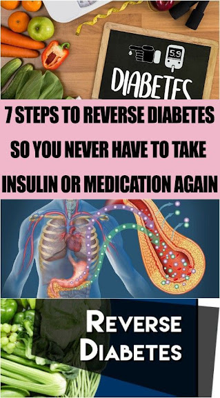 Steps To Reverse Type-2 Diabetes So You Never Have To Take Insulin Or Medication Again