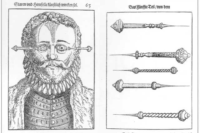 Operasi Katarak Abad Pertengahan