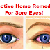 Effective Home Remedies For Sore Eyes!
