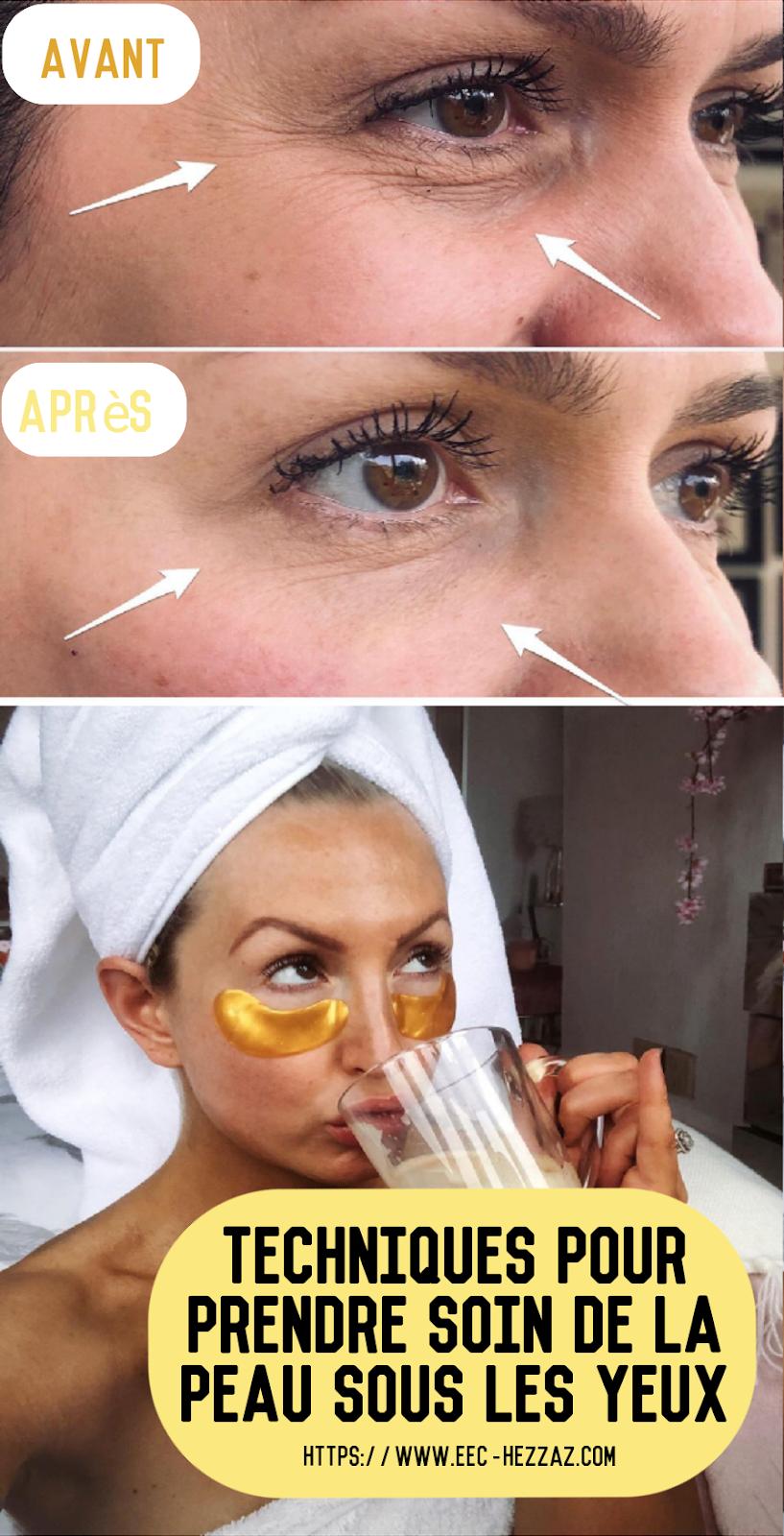 Techniques pour prendre soin de la peau sous les yeux