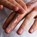 Πώς να περιποιηθείτε τα χέρια σας για την δερματίτιδα από το πλύσιμο και τα γάντια