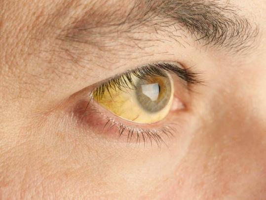 Cara Memutihkan Mata Kuning Secara Alami