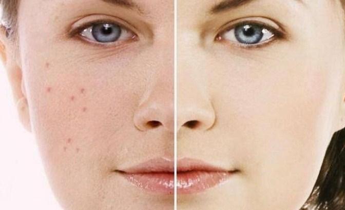 3 Cara Menghilangkan Bintik-Bintik Hitam atau Flek Hitam di Wajah Secara Alami