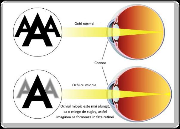 De ce apare miopia? Miopia este ereditara? Gravitatea miopiei se mosteneste?