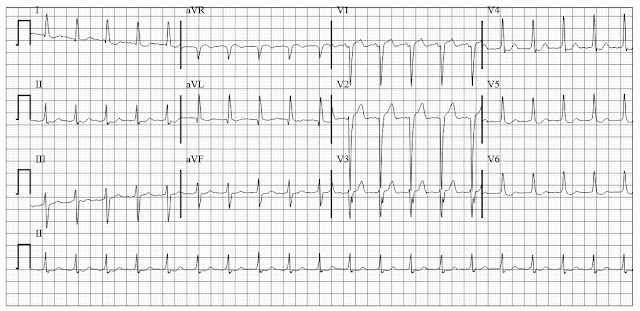 ECG of atrial flutter with 2 is to 1 block
