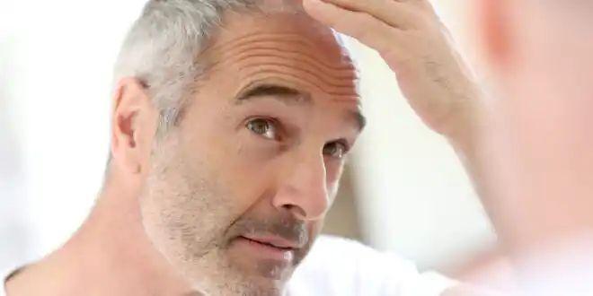 Home Remedies for Hair Fall - Hair Fall Treatment