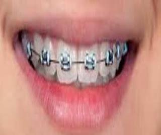 tips menjaga kesehatan kebersihan rongga mulut untuk pengguna kawat gigi behel