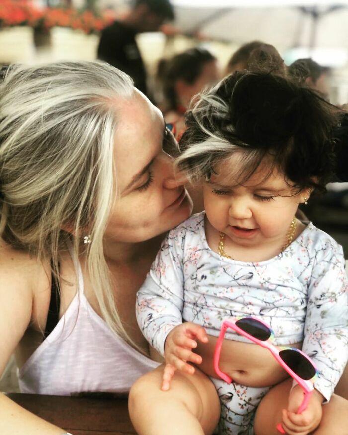 white hair girl, baby with white hair, baby white hair, poliosis hair,