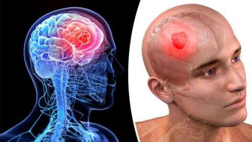 5 Gejala dan Ciri-ciri Tumor Otak Stadiun Awal, Cek Kepalamu Kalau sering pusing