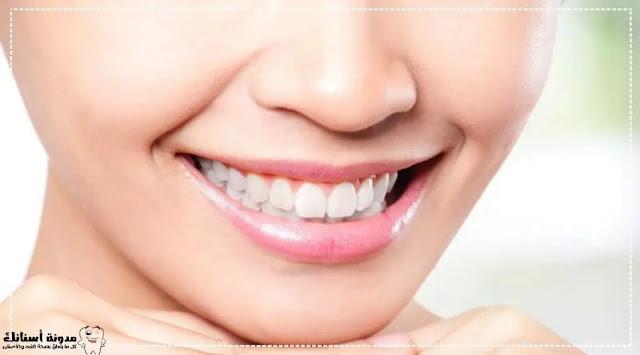 كيفية الحصول على أسنان ناصعة البياض.