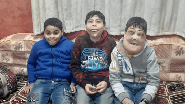 أحمد ويوسف كلما خرجا إلى الشارع يظن الناظرون إلى وجهيهما أنهما يرتديان أقنعة للهو واللعب