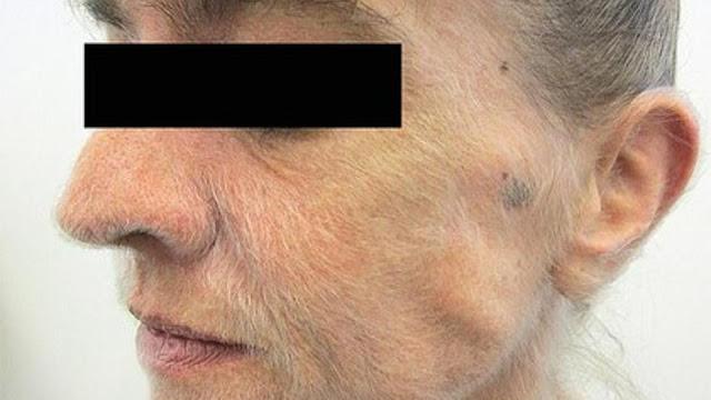 Лицо женщины покрылось шерстью из-за 37-летнего стажа курения