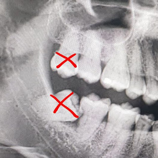 wisdom tooths