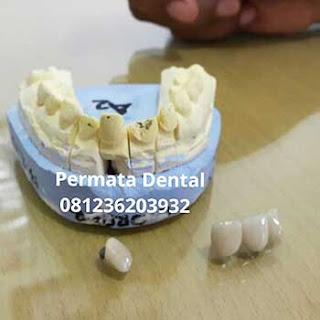 gambar gigi tiruan cekat gigi permanen crown bridge metal porselen