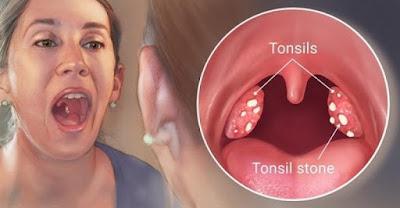 Hilangkan Tonsil Dengan 6 Cara