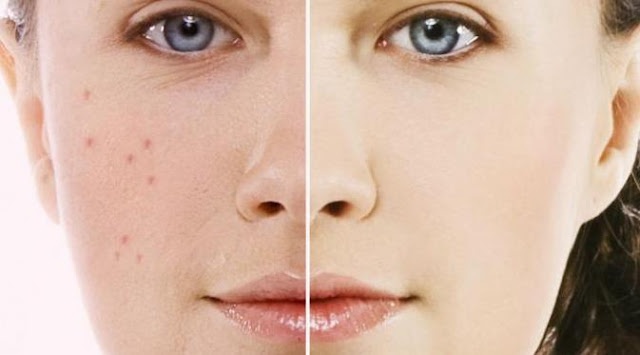 Alternative Types of Acne Treatments
