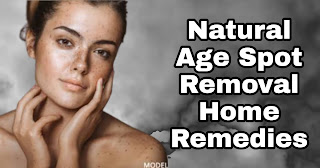 Natural Age Spot Removal Home Remedies.