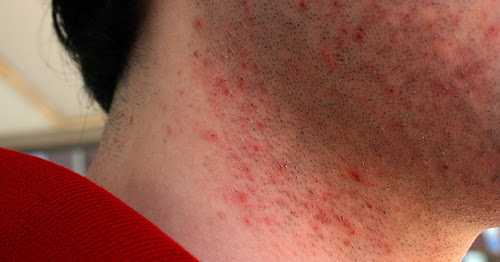 Razor Bumps : Five facts you always wanted to know - Pseudofolliculitis Barbae