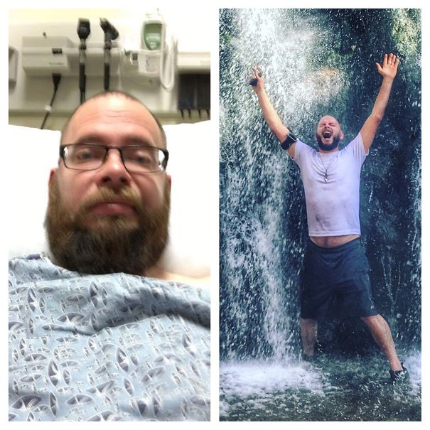10+ Before-And-After Pics Show What Happens When You Stop Drinking - 151 Days Sober