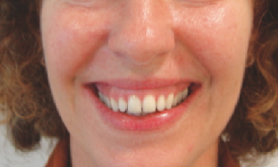 gummy smile prior to treatment with botox