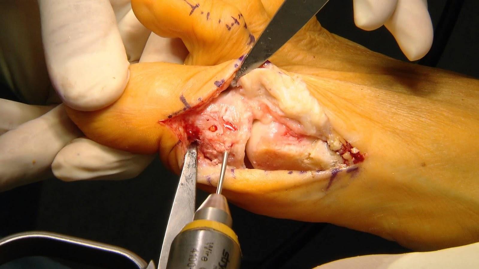 Hallux valgus medicusmeo for Operacion de pies