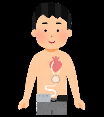 補助人工心臓を付けた人のイラスト(男性)