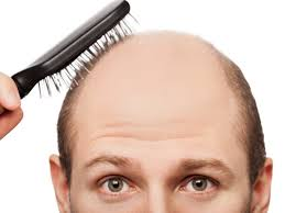 How To stop Hair Fall in Men Best Home Remedies