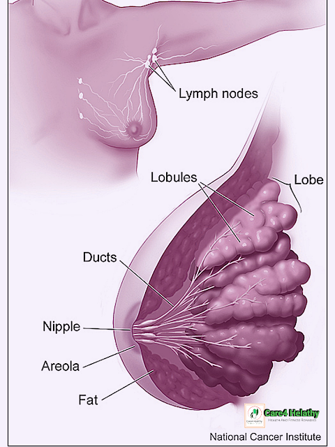 breast cancer:
