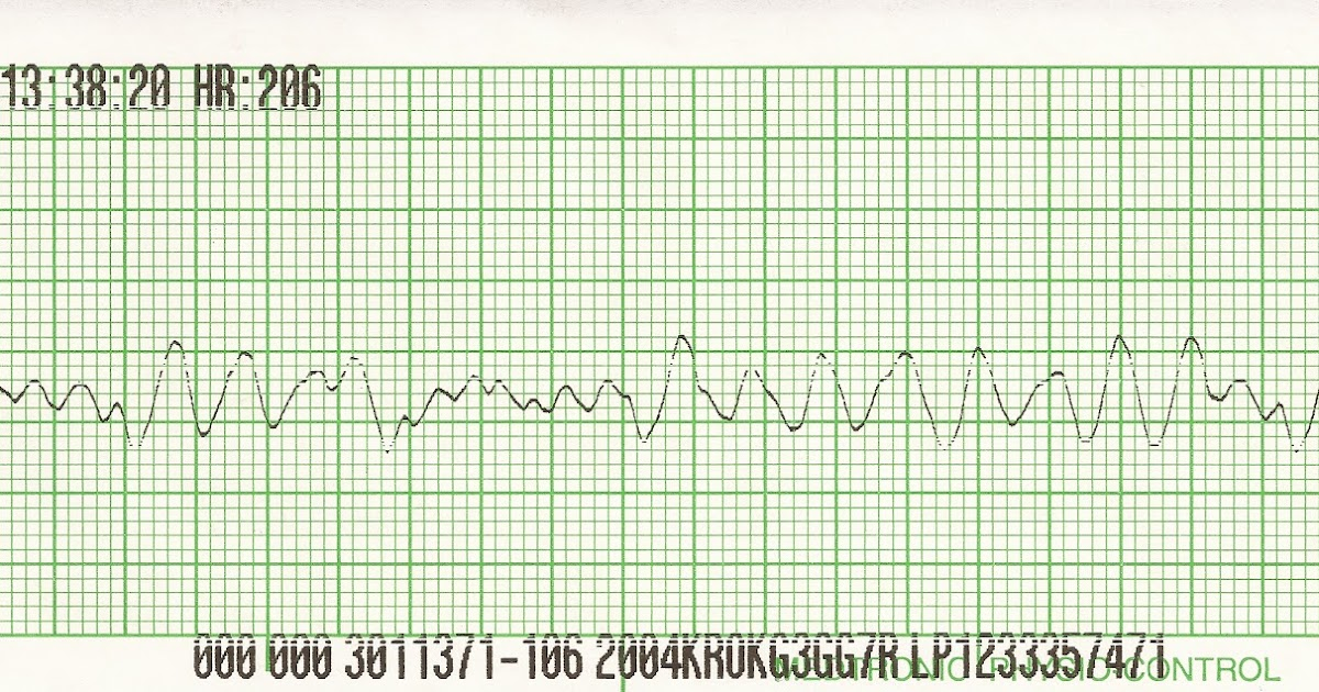 Million ekg strip quiz