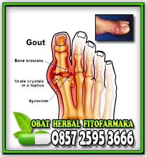obat asam urat, asam urat, kolesterol, otot kaki bengkak