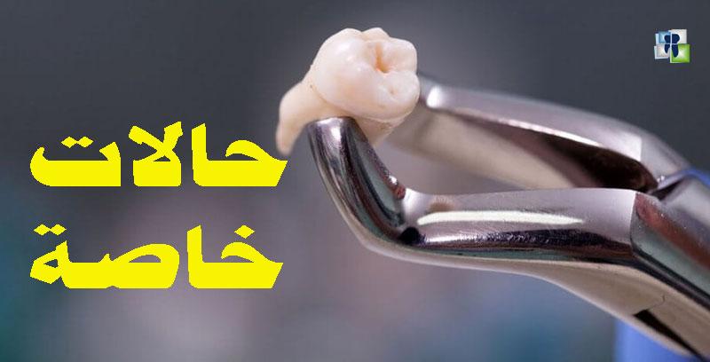 حالات خاصة في قلع الأسنان الدائمة والمؤقتة والشاذة