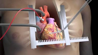 أنواع جراحة القلب