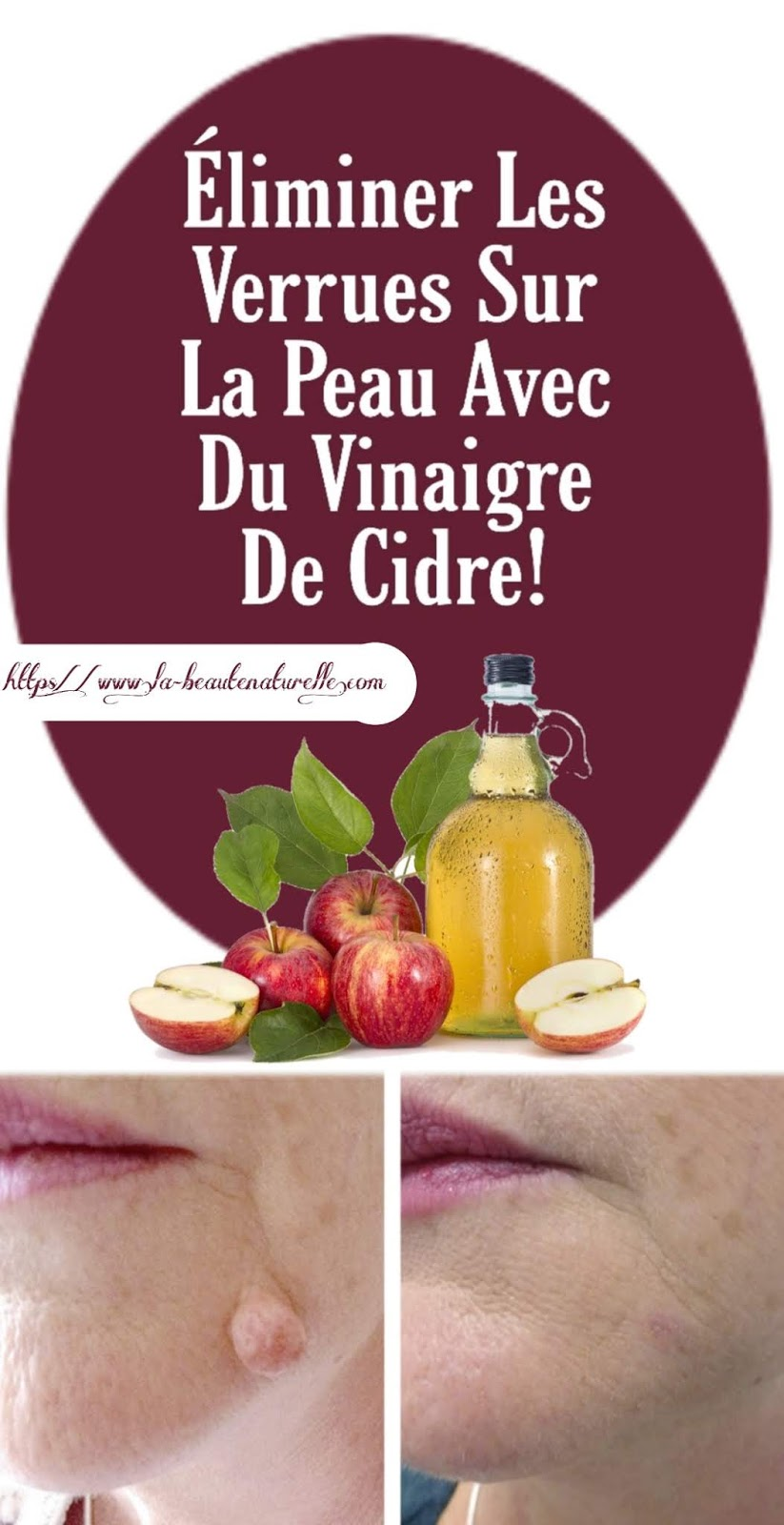 Éliminer Les Verrues Sur La Peau Avec Du Vinaigre De Cidre!