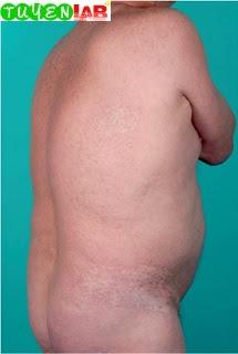 Fig. 5.60 Chronic graft-versus-host disease, sclerodermoid type