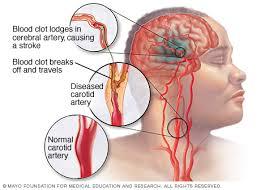cara mengobati stroke berat, cara mengobati penyakit stroke akut, Mengatasi Penyakit Gejala Stroke Ringan