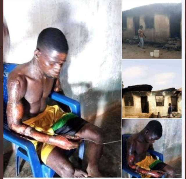 Lady sets husband on fire in Benue State